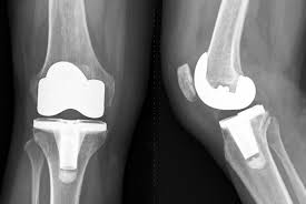 Joint replacement surgeons hailed government's decision to cap the prices of knee implants